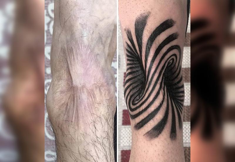 30 татуировок, благодаря которым шрамы и родинки выглядят лучше